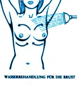 Die Wiederherstellung der Brust der Operation